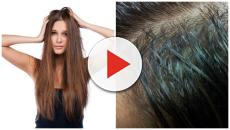 5 maneras de quitar la grasa acumulada al cabello