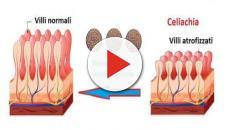 Celiachia, uno studio clinico di fase 2 dimostra che può essere bloccata