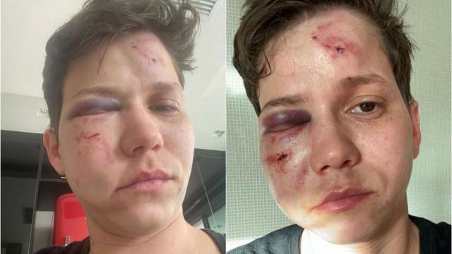 Polícia diz que Karol Eller teria começado briga devido ciúmes de namorada e não homofobia
