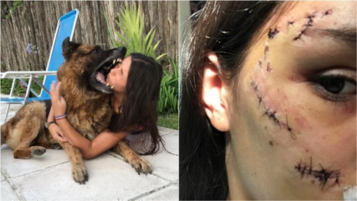 Jovem tenta tirar foto com cachorro, leva mordida no rosto e mostra resultado