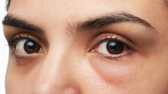 La AEDV afirma que las ojeras y las bolsas pueden ser corregidas con ácido hialurónico