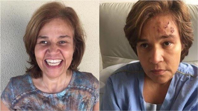Claudia Rodrigues permanece na UTI e não tem previsão de alta
