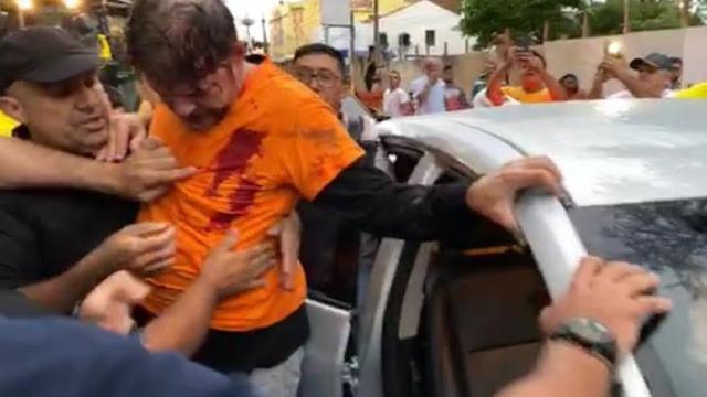 Cid Gomes, irmão de Ciro Gomes, é baleando durante greve de policiais militares no Ceará