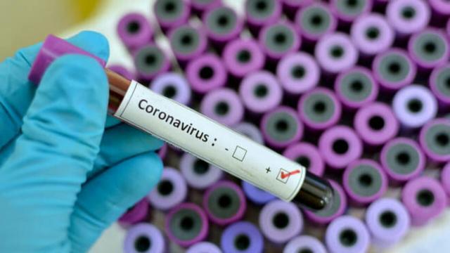 Coronavirus, casi in incremento in Abruzzo e 160 nuovi positivi