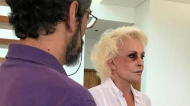 Em campanha contra a violência doméstica, Ana Maria Braga assusta com olho roxo