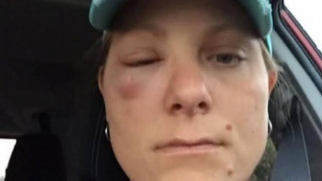 '90 Day Fiancé': Anna posts an old picture of her when she was bee stung