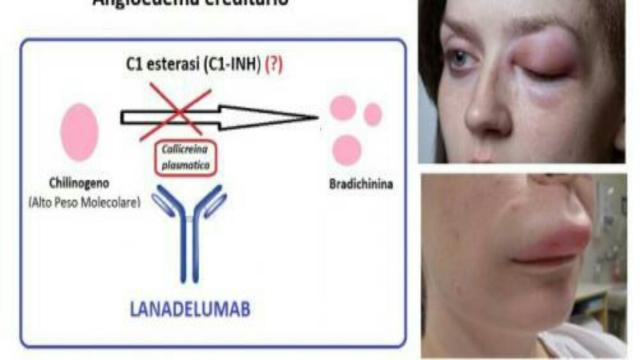 Salute, angioderma ereditario: lanadelumab, ora disponibile anche in Italia