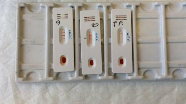 Test sierologici in corso su un campione di 150mila persone: risultati in 15 giorni