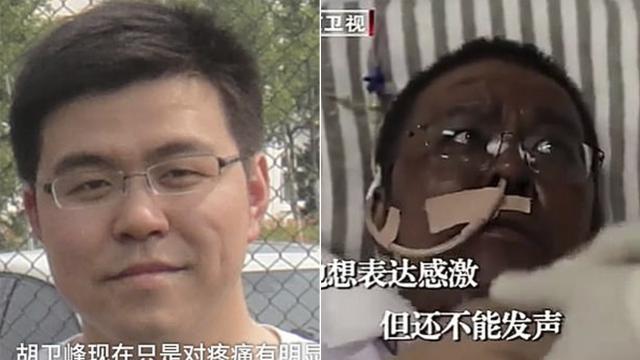 Murió el médico chino con coronavirus al que la piel se le puso negra